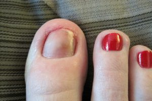 My Poor Toenail