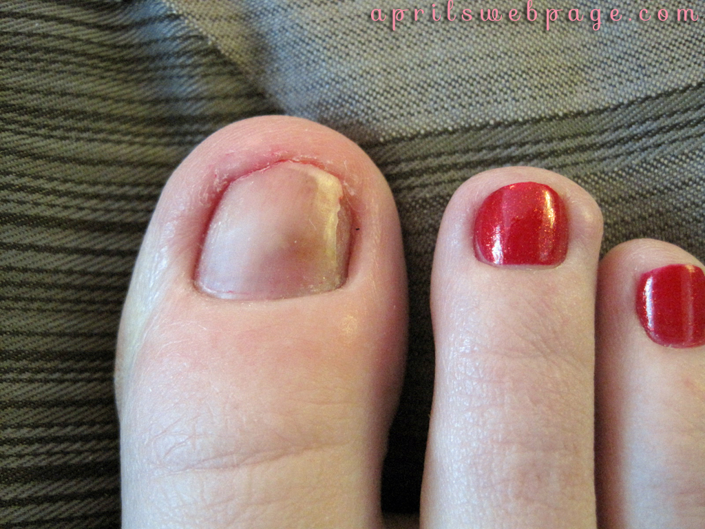 My Poor Toe