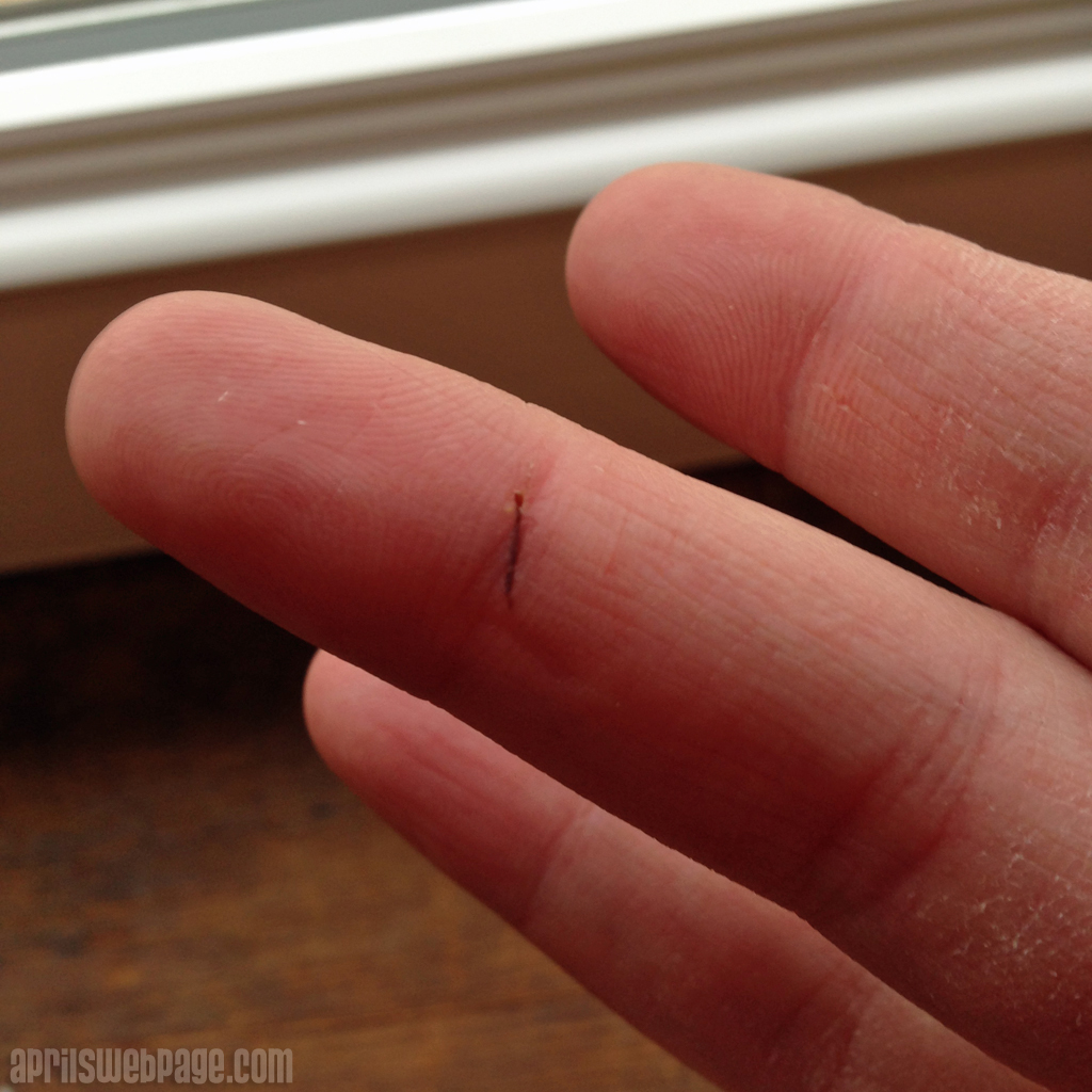 splinter in finger