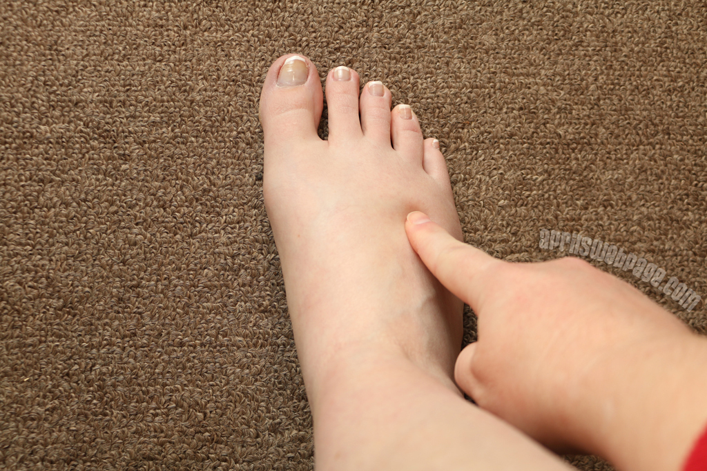 possible stress fracture on foot